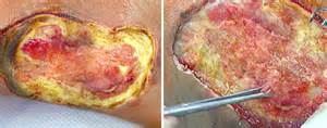 Tissue Viability - Wound Types - e-Learning CPD